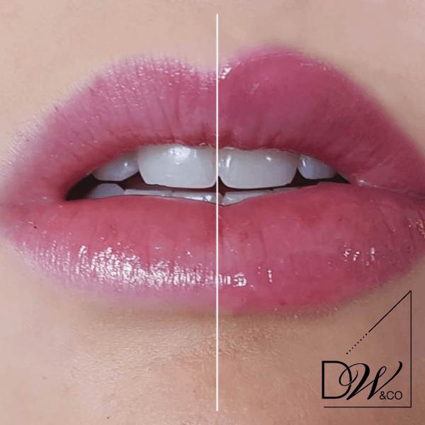 Lip Voltage effect