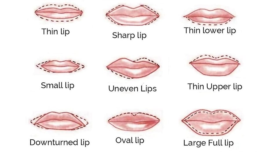 Natural Lip Enhancement