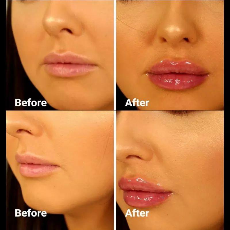 Natural Lip Plumper